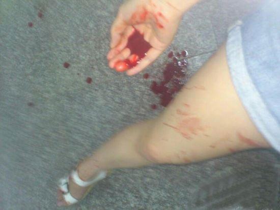 地板上血迹斑斑,一个女生的手掌上满是鲜血,大腿上也沾上了血迹图片