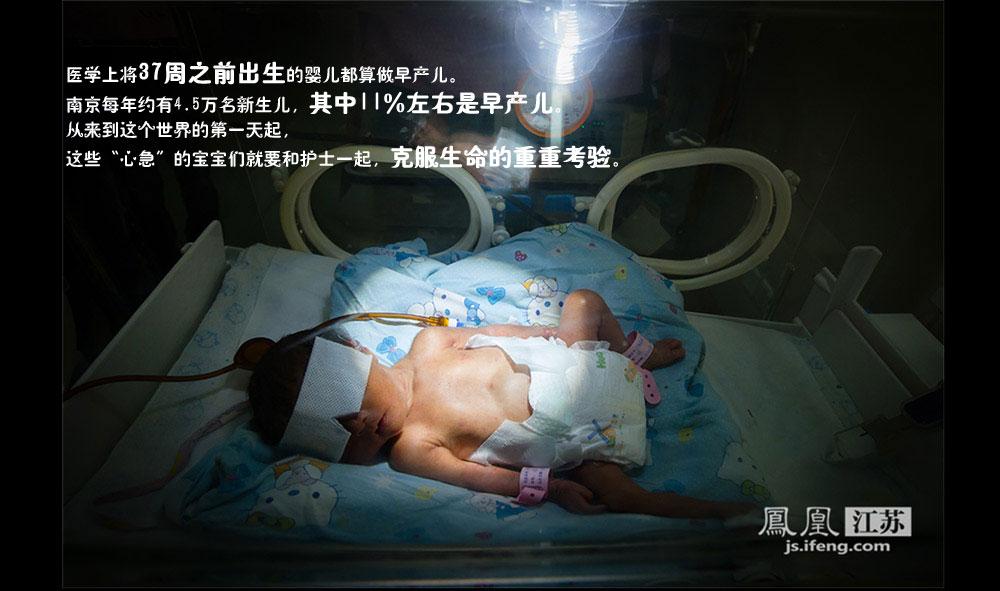 近年来,中国早产儿的数量每年都呈递增趋势,孕妇早产的发生率在11%左右。早产原因至今仍有许多不明之处,一般来说与环境污染、生活压力、身体状况等因素相关。南医大二附院东院每年接收约1000名早产儿,最小的仅800克,相当于4个苹果的重量。不过今年是羊年,该院接收的早产儿数量较往年有所下降。(林琨/摄 胥大伟/文)