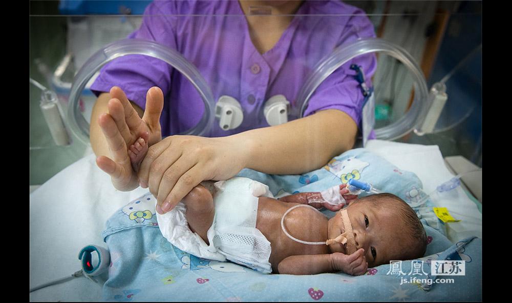 """由于家长往往来不及给孩子起名字,所以在重症监护室里,床号就成了这些早产儿的""""姓名""""。这是一名28周的早产儿,出生时只有950克,护士在给他按摩。这名早产儿吞咽功能不好,连1毫升的奶都吃不下,所以医护人员通过细细的管子给他24小时输入高浓度营养液。(林琨/摄 胥大伟/文)"""