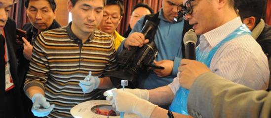 专家演示手术过程