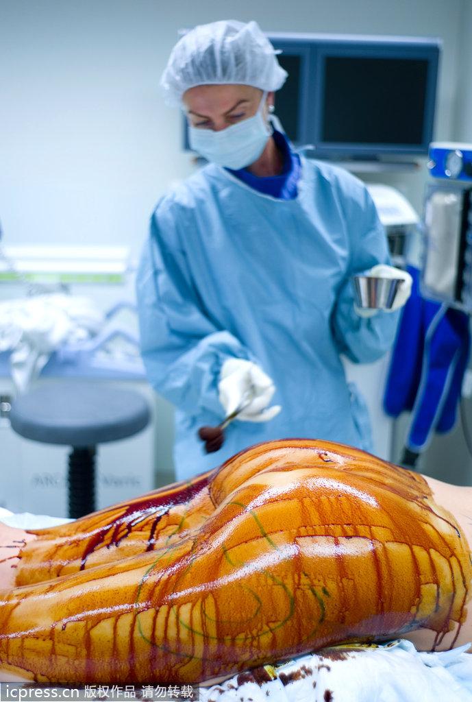 吸脂手术要多少钱