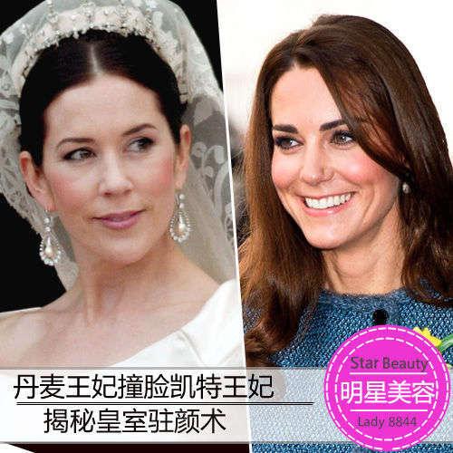 揭秘皇室驻颜术 凯特王妃奢华蜂毒美容