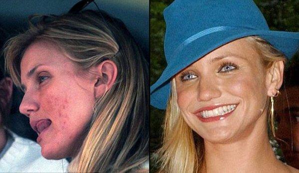 好莱坞女星爱长痘 卸妆素颜照判若两人