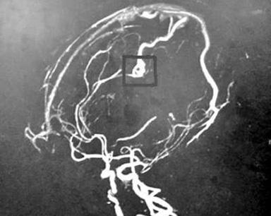 因脑血管动静脉畸形 一岁多孩子突发脑出血
