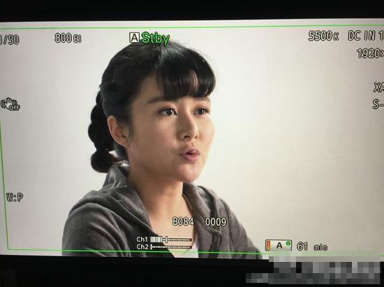 [明星爆料]黄宏女儿膝盖髌骨脱位 坐轮椅工作(图)