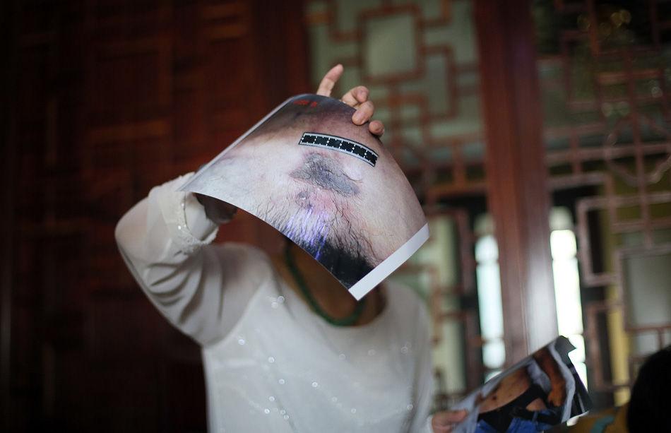 """8月17日,被许多人称作""""中国首席女法医""""的王雪梅在网络上发布视频,认为中国法医学会在""""马跃案""""中的鉴定结果""""荒谬、不负责任"""",因此辞去中国法医学会副会长职务,并退出中国法医学会,引起广泛关注。视频发出后,中国法医学会和最高检察院检察技术信息研究中心先后称,没有收到王雪梅的辞职申请,王雪梅已经不再担任该中心副主任,并且已经多年不从事法医实际鉴定工作。许多人开始怀疑王雪梅声明的真实性。""""马跃案""""到底有何争议?王雪梅的辞职声明是真是假?8月23日,王雪梅在北京接受凤凰网等媒体对话,承认从今年6月起不再担任最高检察院监察技术信息研究中心副主任;但还在最高检任职,从事资料整理工作。对于这一变动,王雪梅认为是一种解脱。图为8月23日下午,王雪梅在北京的工作室接受采访时手持马跃的验尸照。李白/摄"""