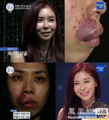 韩国整容节目 丑女变身韩国女星刘仁娜斗战神混沌宝库