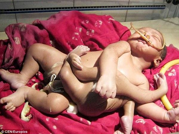 印度东部诞生一名四手四脚的男孩(图片来源:《每日邮报》)