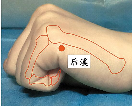 结构尤其椎间盘的退变,刺激或压迫了神经根,交感神经,血管,脊髓和其
