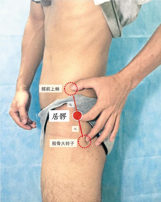 灸居髎穴缓解髋部疼痛|髋关节|坏...
