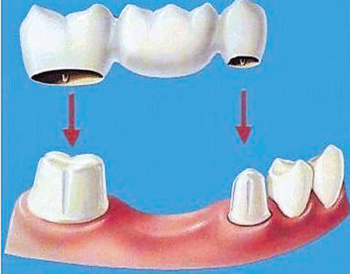 牛的牙齿结构图片