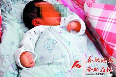 四维彩超显示一切正常 胎儿生下出现左手畸形图片