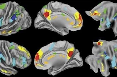 人类大脑无法同时做到善解人意又逻辑清晰