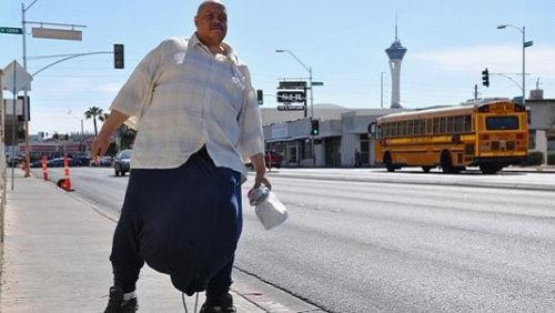 男子患怪病长60公斤睾丸