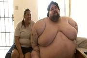 世界最胖男子自杀 体重800斤曾7年未走路