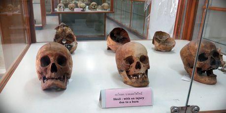 曼谷死亡博物馆无模型全实物展出食人魔尸体样本