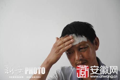 汪师傅回忆起当时一幕,称感到很恐惧,他自己现在头部和身上多处受伤。
