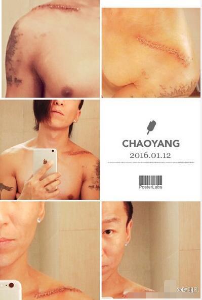 [明星爆料]陈羽凡锁骨受伤裸上身自拍 疤痕明显