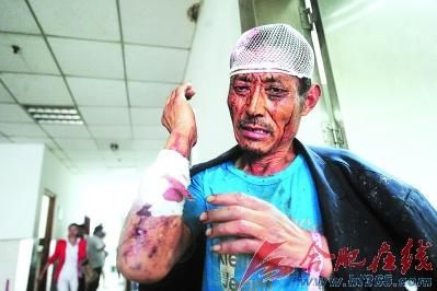 """受伤的程士中src=""""http://y2.ifengimg.com/news_spider/dci_2012/06/4abdce7d3c6c0f6ec89eaebd4e788ab5.jpg"""""""