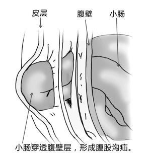 正常腹股沟图片_腹股沟疝不治疗有哪些危害